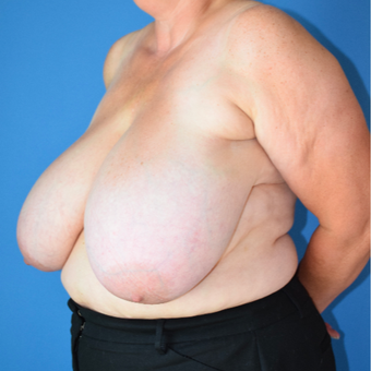 55-64 year old woman treated with Breast Reduction before 3541507