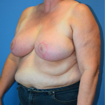 55-64 year old woman treated with Breast Reduction after 3541507