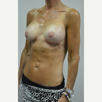 55-64 year old woman treated with Breast Augmentation after 3054972