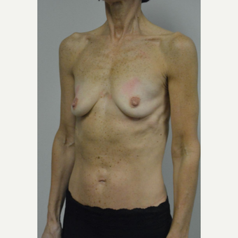 55-64 year old woman treated with Breast Augmentation before 3054972