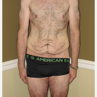 35-44 year old man treated with Male Tummy Tuck before 3576486