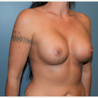35-44 year old woman treated with Breast Augmentation after 3712172