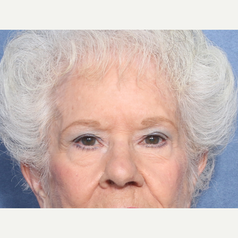 75 and up year old woman treated with Eyelid Surgery (view 1 of 2) before 3181065