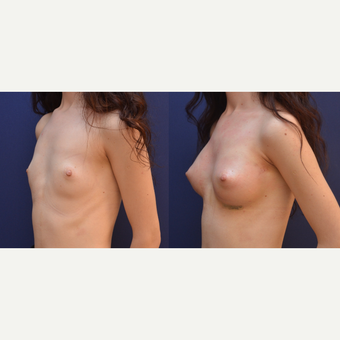18-24 year old woman treated with Breast Augmentation before 3238846