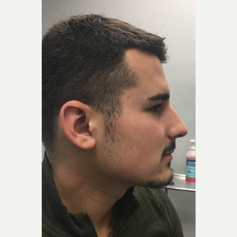 25-34 year old man treated with Microneedling after 3781954