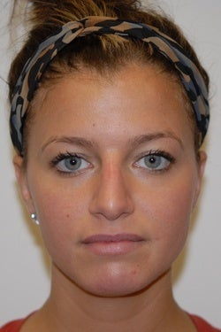 Non surgical Rhinoplasty in an 24 year old female