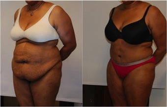 Large Abdominoplasty 3 months before and after before 814486