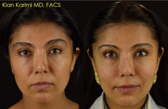 NovaThreads for Non-Surgical Cheek Lift and Corner of Mouth Tightening before 2629647
