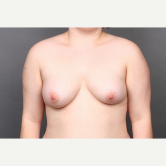 25-34 year old woman treated with Breast Reconstruction before 3131367