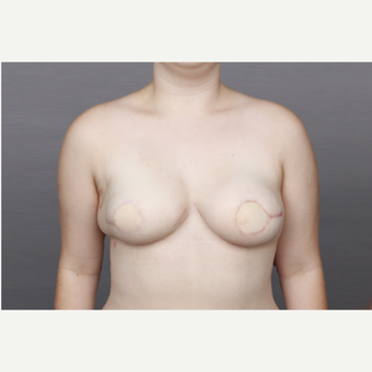 25-34 year old woman treated with Breast Reconstruction after 3131367