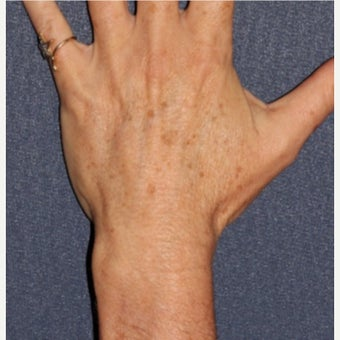 45-54 year old woman treated with Age Spots Treatment before 1592628