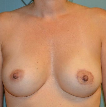 35-44 year old woman treated with Breast Lift with Implants after 3358447