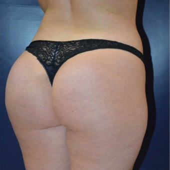 25-34 year old woman treated with Butt Augmentation after 1727154