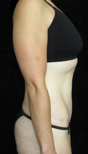 33 year old woman treated with Tummy Tuck 3093782