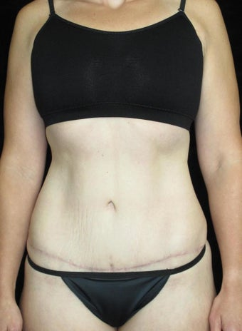 33 year old woman treated with Tummy Tuck after 3093782