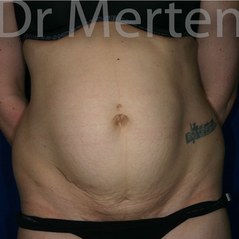 Tummy Tuck before 3599573