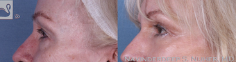 65-74 year old woman treated with Eyelid Surgery after 3769543