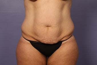 Tummy Tuck (abdominoplasty) before 1121653