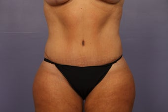Tummy Tuck (abdominoplasty) after 1121653