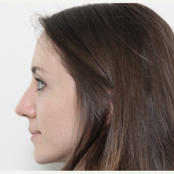 25-34 year old woman treated with Rhinoplasty after 3365879
