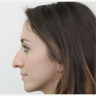 25-34 year old woman treated with Rhinoplasty before 3365879