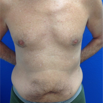 55-64 year old man treated with Pec Implants before 3326253