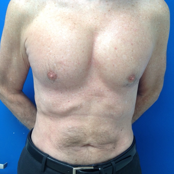 55-64 year old man treated with Pec Implants after 3326253
