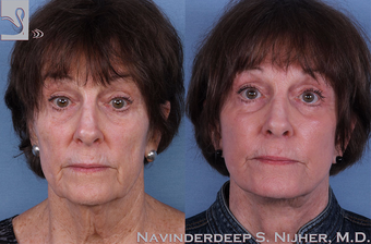 65-74 year old woman treated with Facelift before 3769401