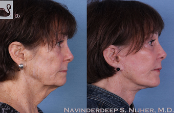 65-74 year old woman treated with Facelift after 3769401