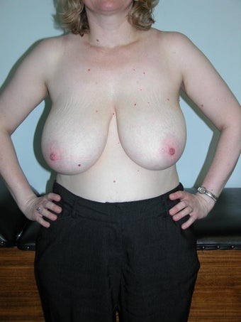 Breast Reduction  before 993702