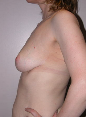 Breast Reduction  993702