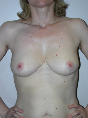 Breast Reduction  after 993702