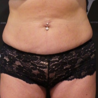 Coolsculpting for a flatter abdomen before 3265270