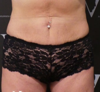 Coolsculpting for a flatter abdomen after 3265270