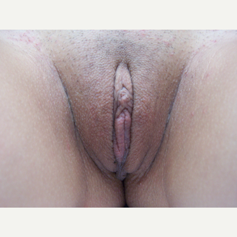 25-34 year old woman treated with Labiaplasty after 3578102