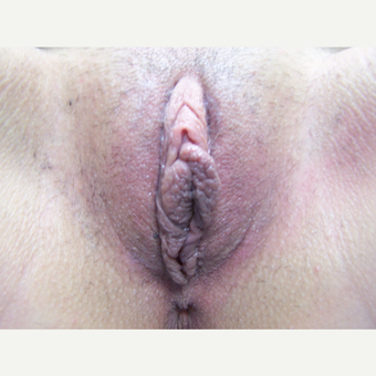 25-34 year old woman treated with Labiaplasty before 3578102