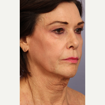65-74 year old woman treated with Facelift before 3659358
