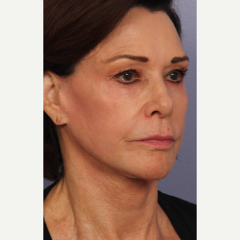65-74 year old woman treated with Facelift after 3659358