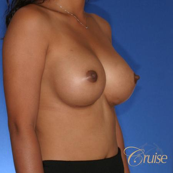 30 year old woman treated with Silicone Breast Implants after 3833264