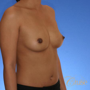 30 year old woman treated with Silicone Breast Implants before 3833264