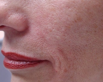 Filler - Nasal Folds after 221452
