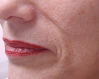 Filler - Nasal Folds before 221452