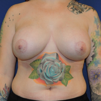 25-34 year old man treated with Breast Lift with Implants after 3783335