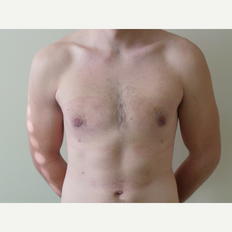 25-34 year old man treated with Male Breast Reduction after 3454687