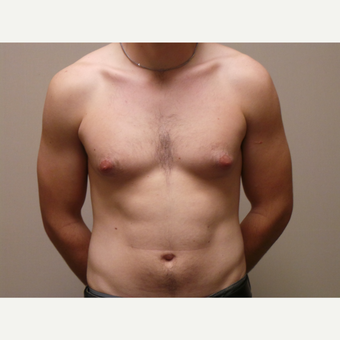 25-34 year old man treated with Male Breast Reduction before 3454687