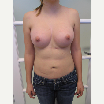 25-34 year old woman treated with Breast Augmentation after 3182924