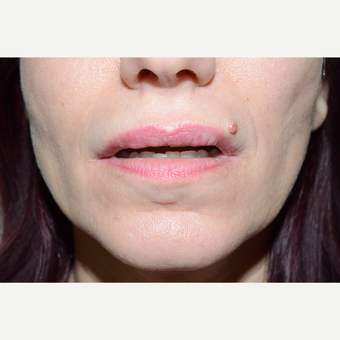 35-44 year old woman treated with Lip Surgery after 3464923