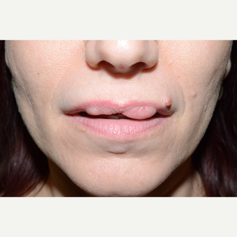 35-44 year old woman treated with Lip Surgery before 3464923