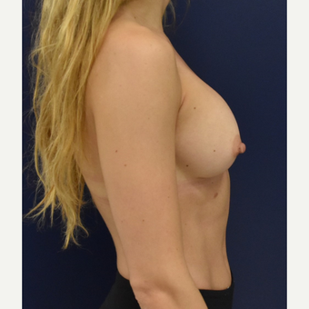 25-34 year old woman treated with Breast Implants after 3711191