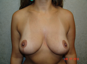 35-44 year old woman treated with Mommy Makeover
